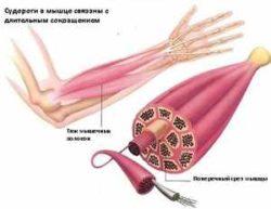 судороги в мышцах