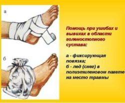 фиксирующая повязка и холод на ноге