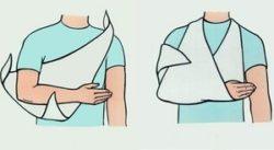 обездвиженный сустав