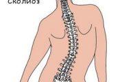 Сколиоз грудного отдела позвоночника: причины, симптомы и методы лечения