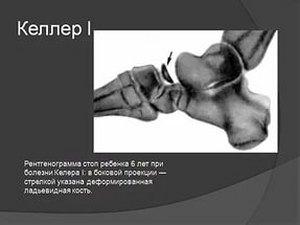 деформированная кость