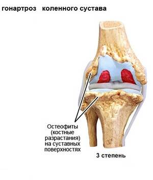 костные разрастания на суставных поверхностях