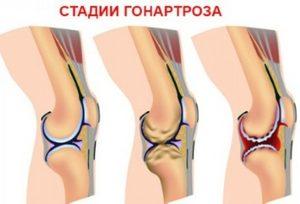 стадии артроза коленного сустава