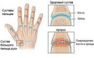 Артроз пальцев рук: причины, симптомы, виды и методы лечения