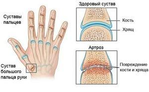 Артроз пальцев рук симптомы