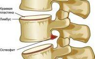 Остеофиты позвоночника: когда и у кого образуются, симптомы и лечение
