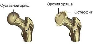 Остеофиты: виды, почему образуются и как от них избавиться
