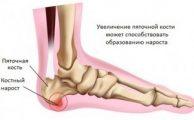 Остеофиты: причины образования костных наростов и способы избавления от них