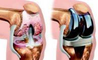 Отзывы врачей и пациентов об эндопротезировании коленного сустава