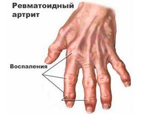 Шишки на пальцах рук лечение народными средствами