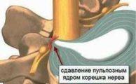 Корешковый синдром: почему возникает, симптомы и способы коррекции такого состояния