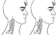 Ретролистез: причины, симптомы и лечение