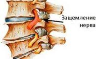 Защемление нерва в области спины: причины, симптомы и методы лечения