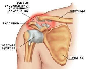 Перелом косточки на руке фото