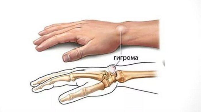 Гигрома: что это такое, ее симптомы и методы лечения