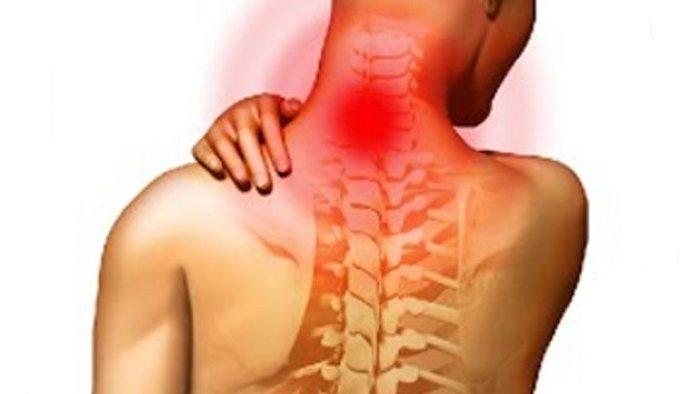 Болит мышца на шее слева