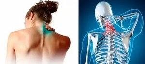Болит шея и плечо с левой стороны