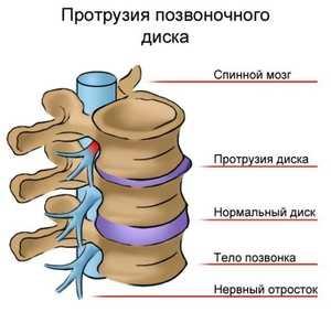 повреждение нерва