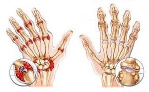 пораженные суставы кистей рук