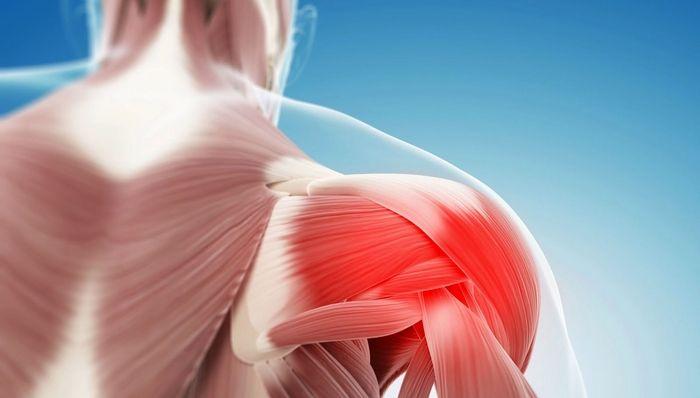 воспалительное повреждение мышц