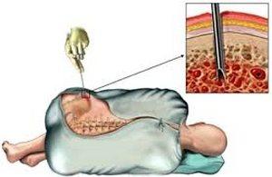 Биoпcия мышeчнoй ткaни